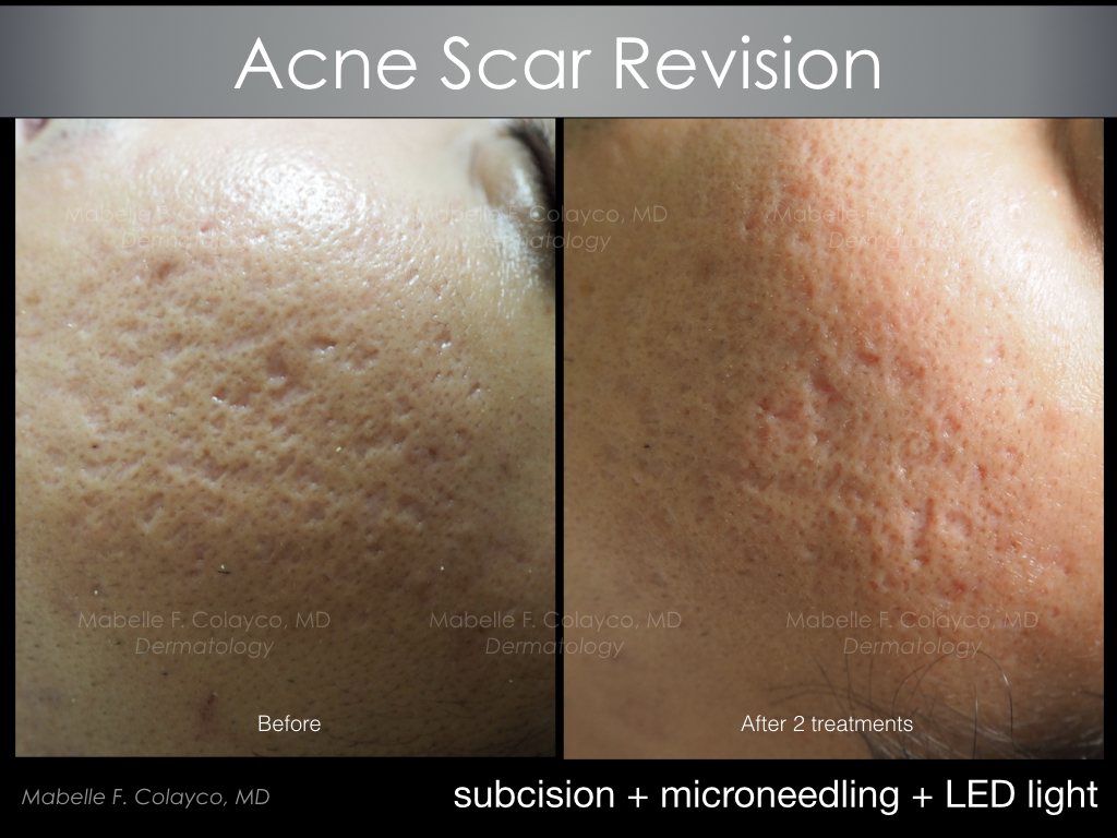 subcision + microneedling + LED light