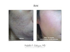 Good Skincare = Good Skin